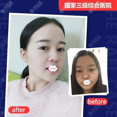 四川友谊医院整形美容科李萍双眼皮+开眼角案例对比图
