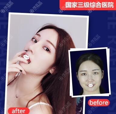四川友谊医院整形美容科李萍鼻综合隆鼻案例