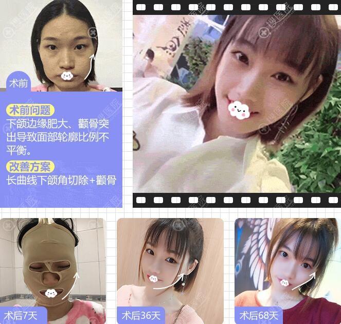 四川友谊医院整形科李继华下颌角颧骨颧弓磨骨瘦脸案例恢复图