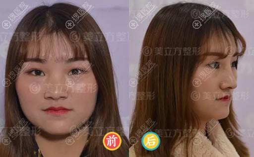 昆明美立方刘凤斌鼻综合隆鼻案例