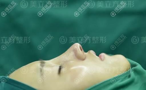 昆明美立方刚做完隆鼻手术图片