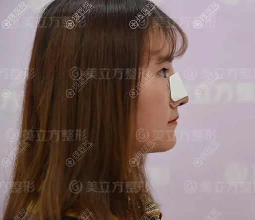 在昆明美立方做隆鼻7天恢复照