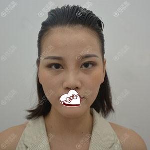 西安画美鼻综合手术7天
