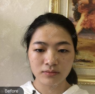 福州台江双眼皮案例术前照