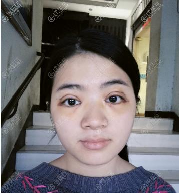 福州台江钟波双眼皮案例7天效果