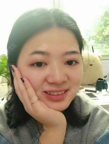 福州台江钟波做双眼皮怎么样