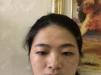 决定去福州台江找钟波做双眼皮手术前我还考虑过福州韩尔整形