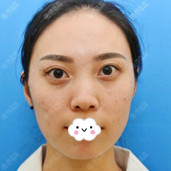 昆明王的整形医院王海木硅胶假体隆鼻真人案例