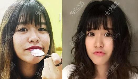 北京华韩张冬梅为学生做激光祛斑美肤案例