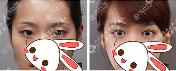 广州全切双眼皮案例术前术后效果对比图