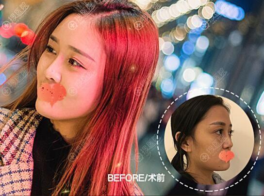 刘中国自体脂肪面部填充对比图