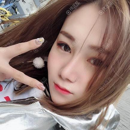 北京长虹于志宏隆鼻案例2月效果