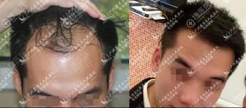 广州市荔湾区人民医院发际线种植案例效果前后对比照片