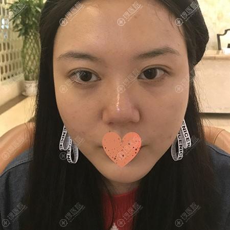 成都玉之光鼻修复术前照片