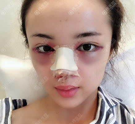 北京壹加壹刚做完双眼皮和隆鼻图片