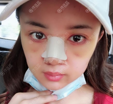 做完双眼皮和隆鼻5天恢复照