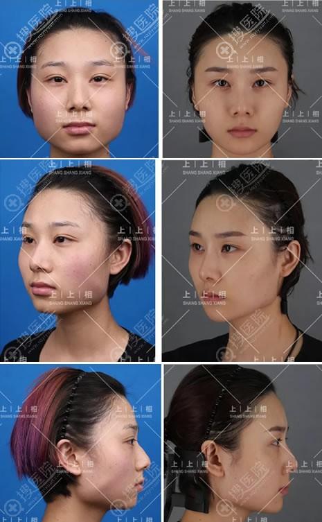 北京上上相医院庞东亮脂肪填充案例对比图