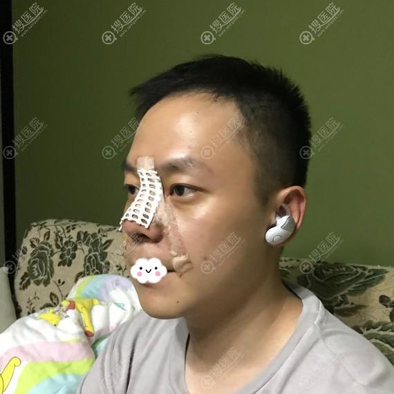 成都美极鼻综合隆鼻术后3天照片