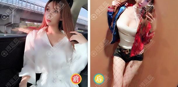 北京玲珑梵宫王光辉自体脂肪丰胸案例