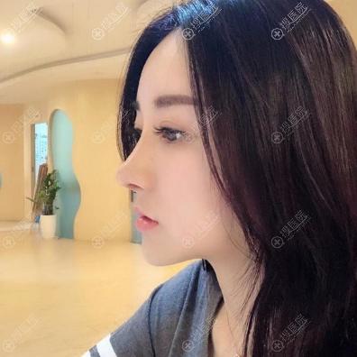长沙素妍整形医院做鼻子怎么样