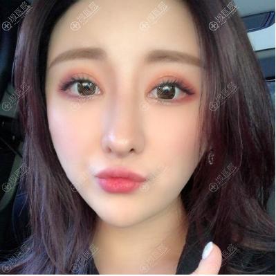 长沙素妍李源海做的肋软骨隆鼻修复案例