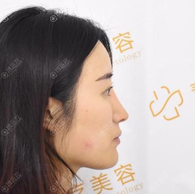 长沙素妍隆鼻修复案例术前照片
