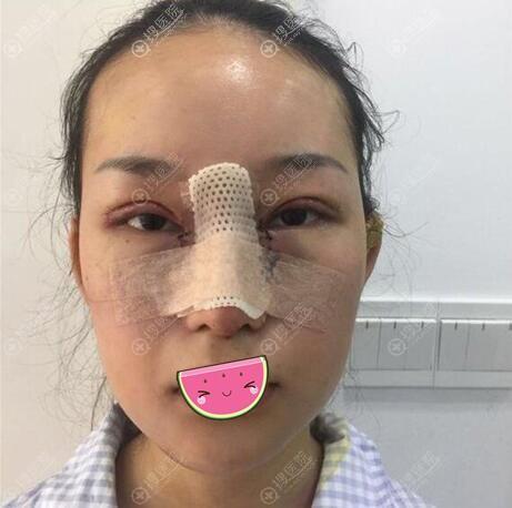 双眼皮隆鼻丰下巴手术后即刻照片