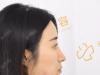 打听到长沙素妍做鼻子很出名于是去找李源海做了肋软骨隆鼻修复