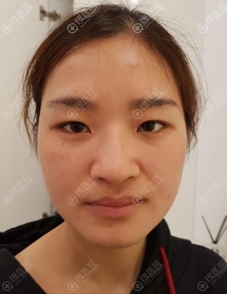 在韩国纯真做隆鼻和双眼皮前
