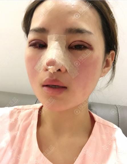 韩国纯真刚做完隆鼻和双眼皮图片