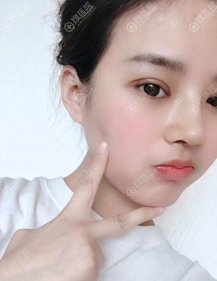 韩国纯真隆鼻和双眼皮案例拆线效果