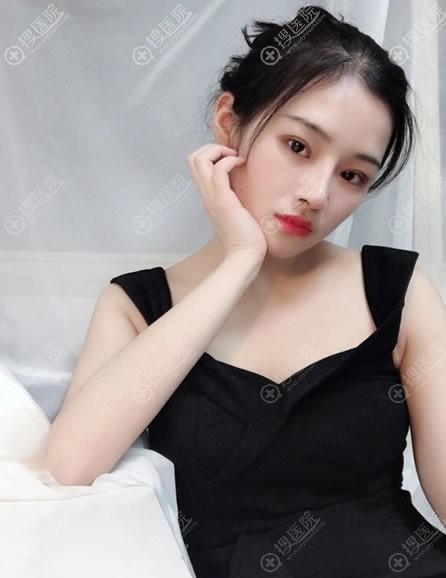 韩国纯真崔宰源隆鼻双眼皮案例