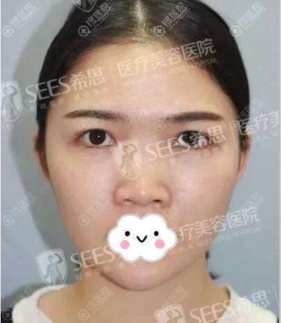 综合鼻整形术前照片