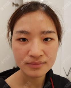 韩国纯真医院隆鼻和双眼皮手术是这么做的,崔宰源院长技术真棒