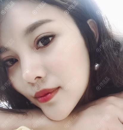 合肥壹美尚叶冠青双眼皮修复案例