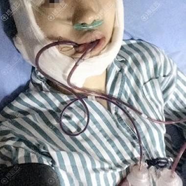 兰州仁和医院刚做完下颌角图片