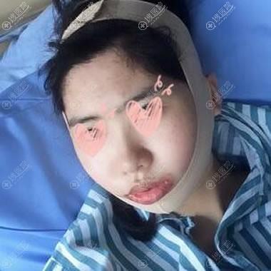 做完下颌角改脸型4天恢复照