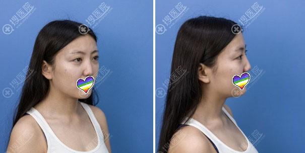赣州韩美鼻综合术前照片