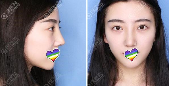 拆线后鼻综合术后10天效果图
