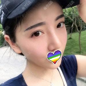 赣州韩美鼻综合手术恢复2个月案例图
