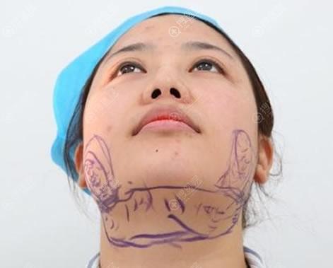 王自谦设计下巴吸脂手术方案
