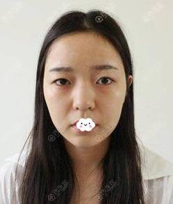 成都军大钟正强双眼皮+假体隆鼻真人案例