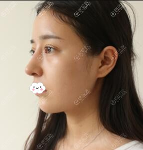 成都军大割双眼皮+隆鼻案例术后8天恢复图