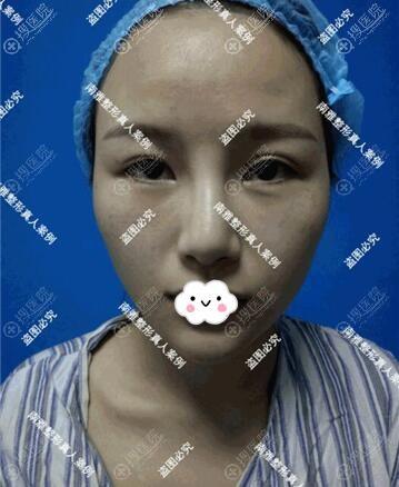 面部脂肪填充+双眼皮术前照片