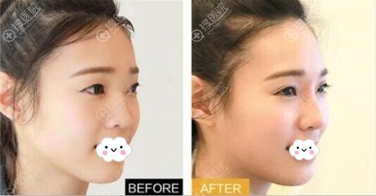 深圳瑞妮丝韩式双眼皮术后对比