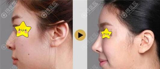 深圳瑞妮丝整形鼻综合案例对比图