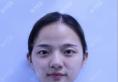 很幸运在上海伯思立预约到原上海九院余东教授做了全切双眼皮