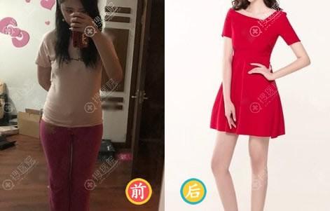 北京美莱宋延刚大腿吸脂案例