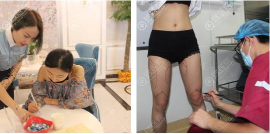 面诊完感觉长沙梵童整形医院挺靠谱的于是找陈仕文做了大腿吸脂