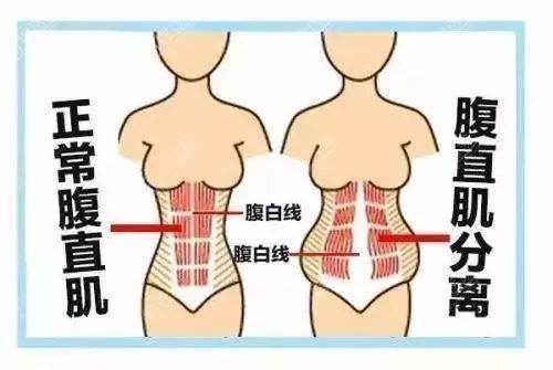 """产后""""大肚子""""腹直肌分离怎么恢复?深圳仁安雅腹部整形来帮你"""